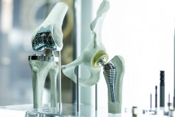 Medical Steel used for bone implants